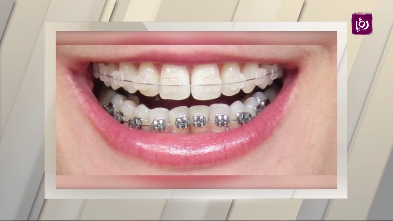 Interview with Dr. Samer Sunna with Ruya Channel – Orthodontics and Maxillofacials